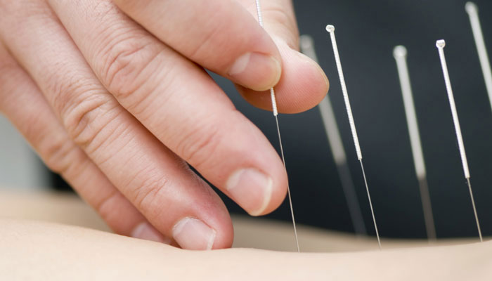 Acupuncture can help reduce chronic pain, depression